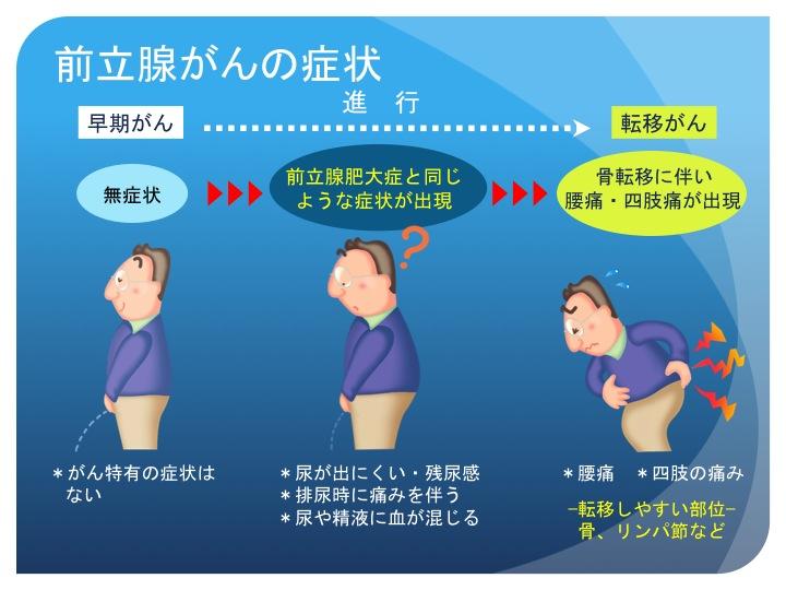 前立腺 が ん 転移